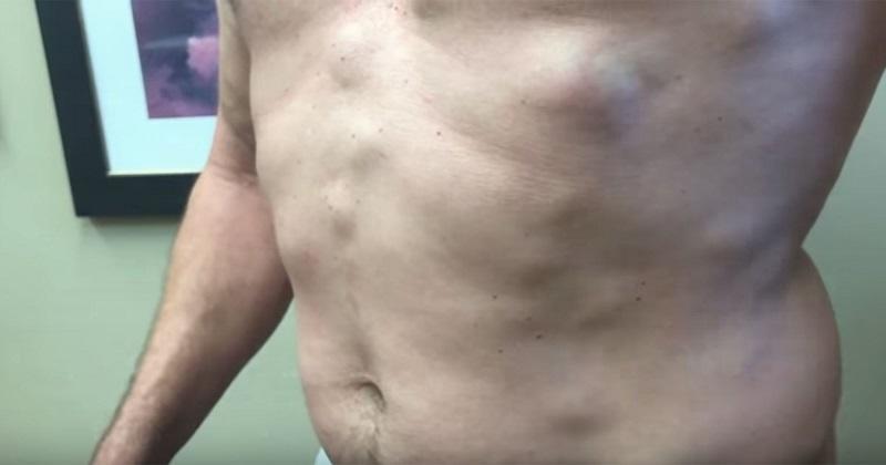 Abdominal lipoma