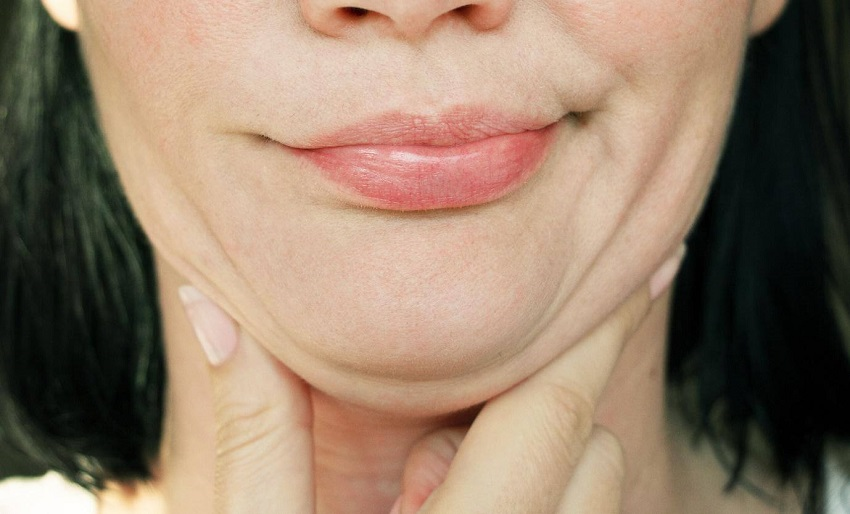 Causes of the double chin